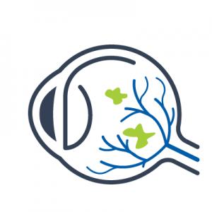 Макулодистрофия сетчатки глаза лечение в санкт петербурге