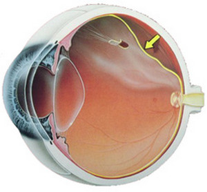 Отслойка сетчатки глаза екатеринбург thumbnail